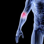 Joint Pain & Inflammation Relief