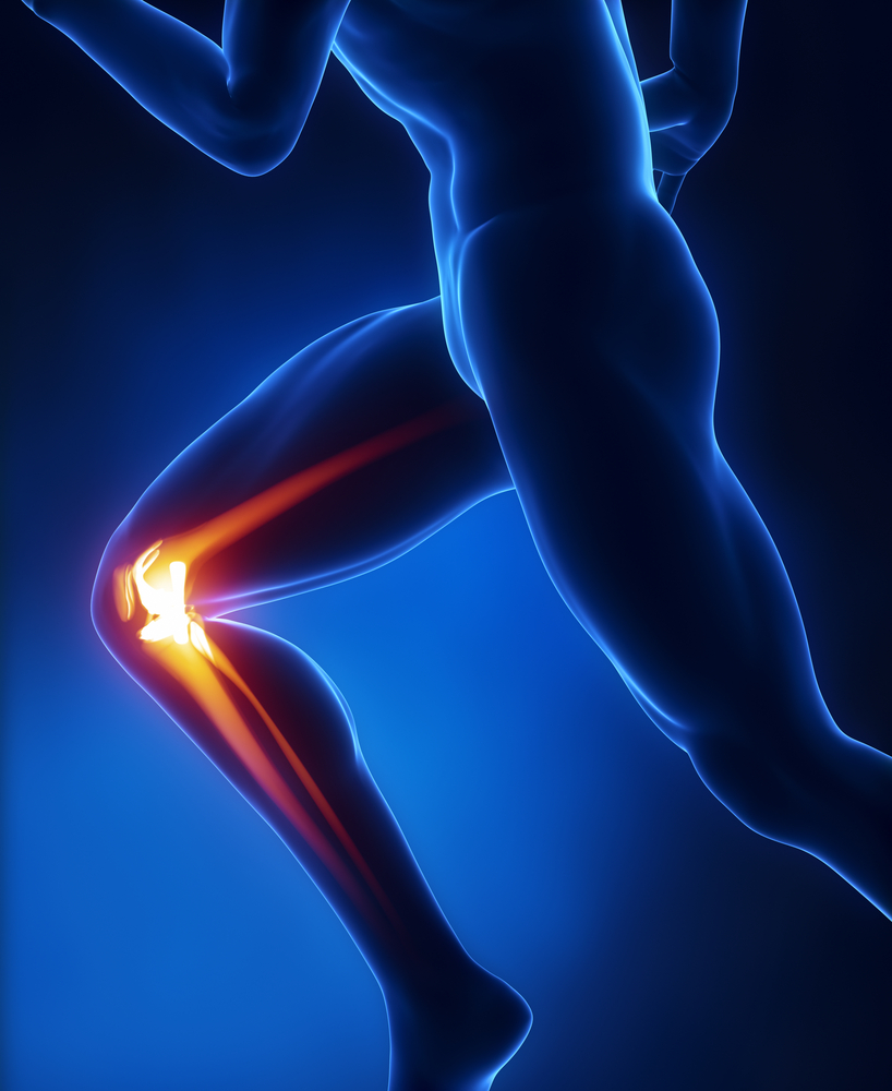 Joint Pain  Critical Bench. Data Transformation Sql Buy Used Car Warranty. Whiskey Sour Egg White Flint Institue Of Arts. Dui Lawyer Charleston Sc Jeep Dealer Portland. American Homeowners Insurance Company. The Treatment Center Lantana. Commercial Fleet Fuel Cards 55 Dodge Truck. Accredited Ultrasound Technician Schools In Florida. Best Free Ecommerce Website Builder